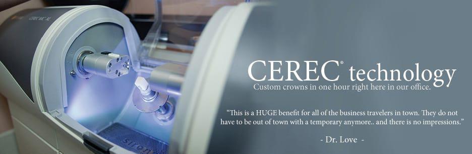 Banner CEREC