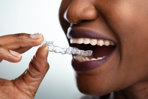 woman with clear dental aligner