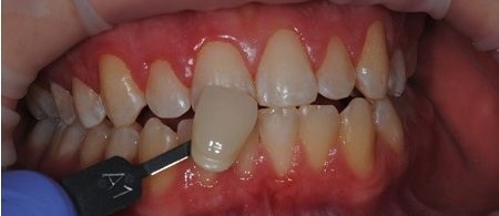 before - Love Dentistry in Wichita